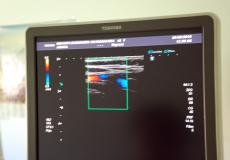 УЗД дослідження в 3D режимі в Арніці