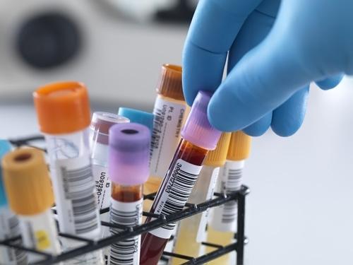 Біохімічний аналіз